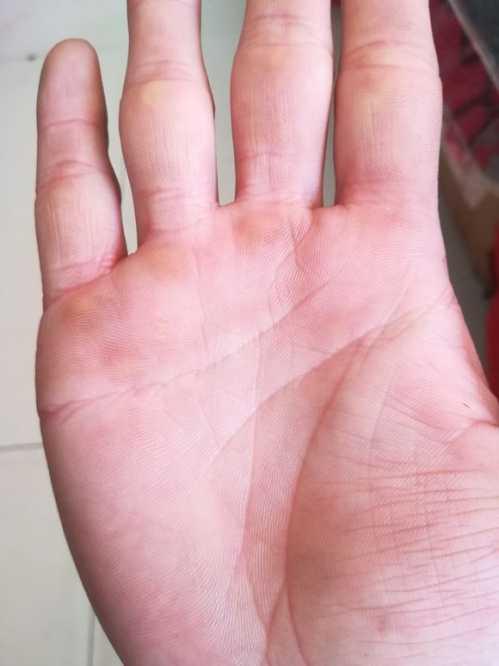手相上比较少见的富贵纹 掌纹看相